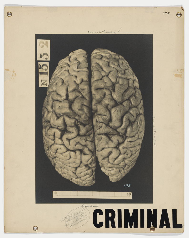 criminal brain
