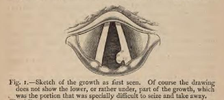 Figure 1 from Mackenzie