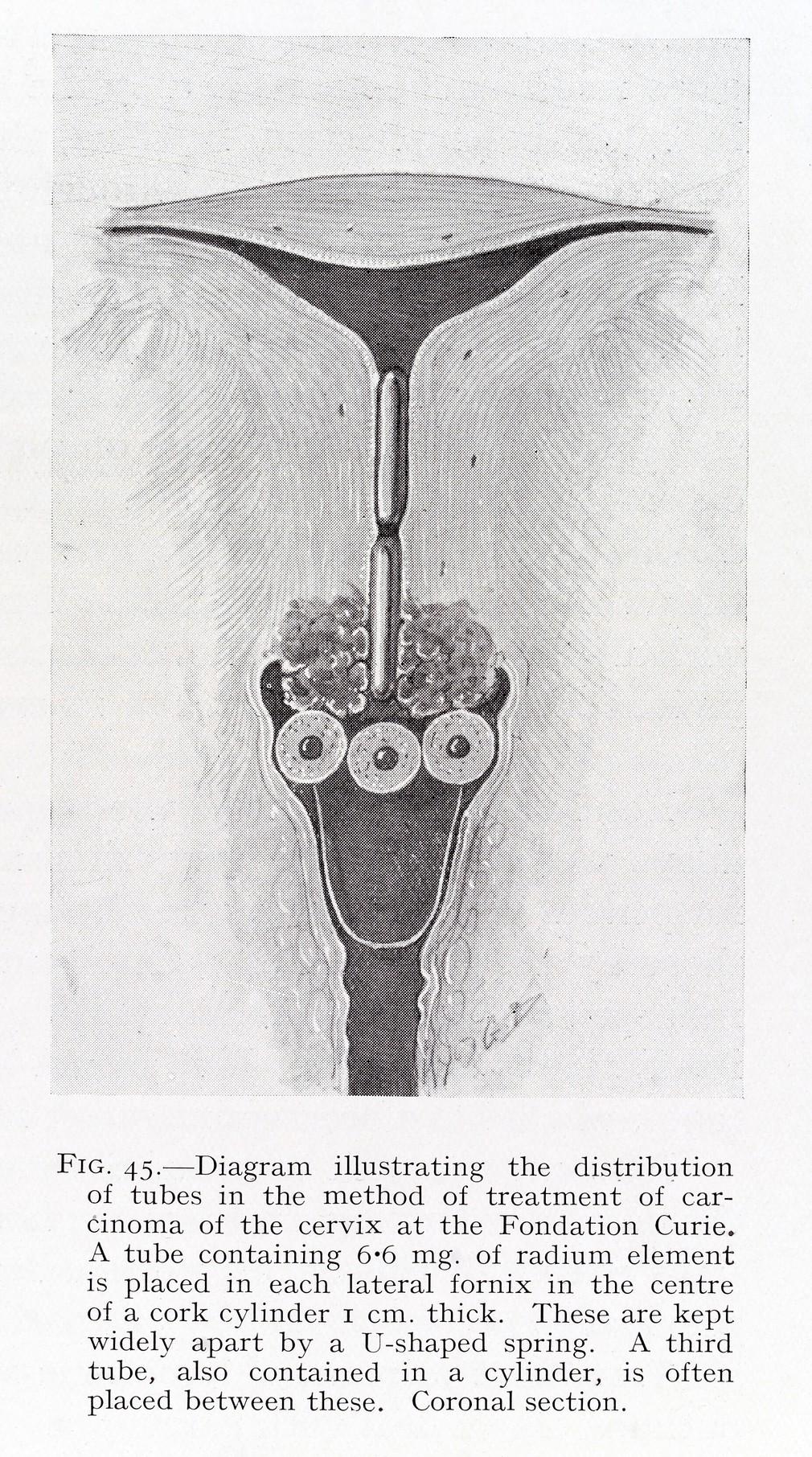 Radium for the cervix